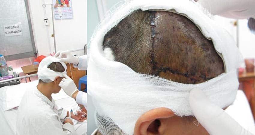 Sử Dụng Mũ Bao Tóc Đề Phòng Tai Nạn Cuốn Tóc Lao Động Nữ
